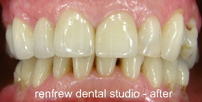 4 crowns and whitening